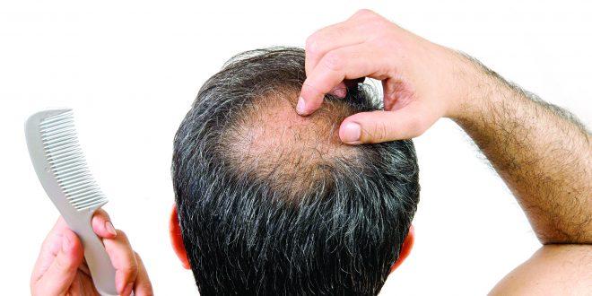 केस गळणे